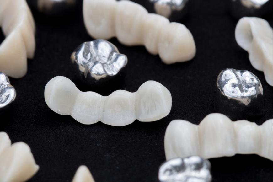 歯科技工士の給料はどのくらいか徹底調査