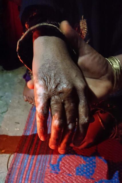 15歳の女性は手を火であぶられ、全身をナイフで傷つけられてから暴行を受けたという
