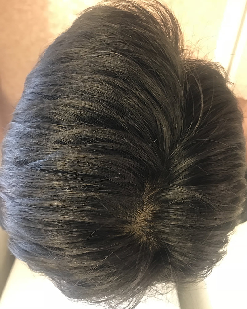 男性毛髪画像