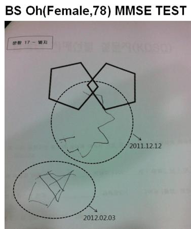 【図3. MMSE改善効果】