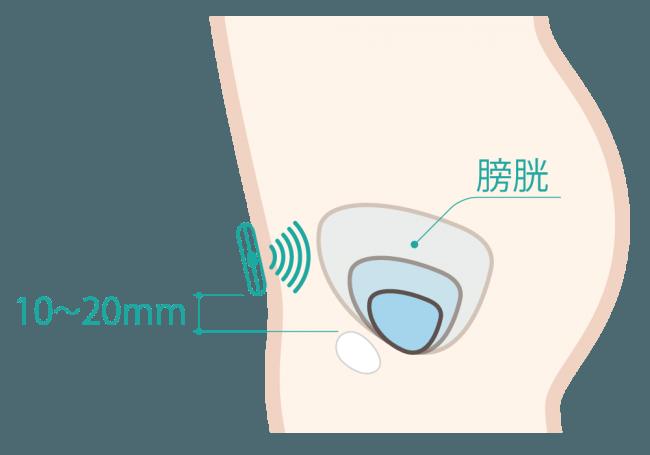 DFreeの仕組み:下腹部に装着したセンサーが膀胱の変化をモニタリングする