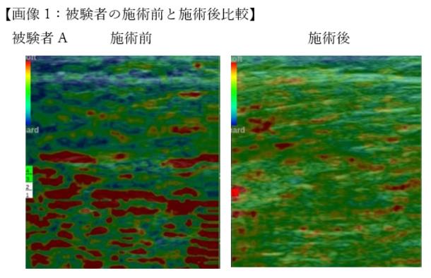 超音波エコー機器「エラストグラフィー」でも筋弛緩効果が認められています(固い筋肉=青,バランスの良い筋肉=緑,弱化した筋肉=赤)